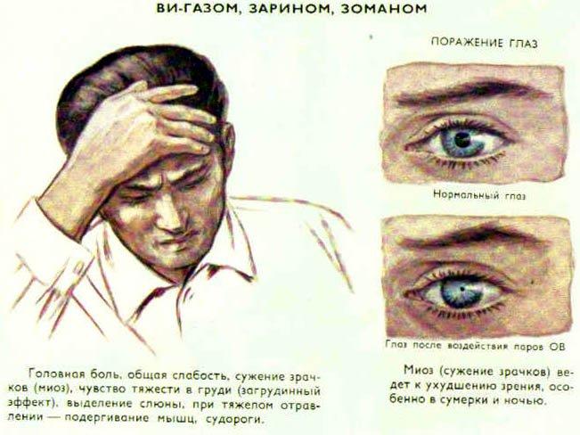 Нервно-паралитические газы