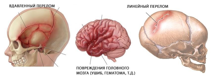 Переломы костей черепа