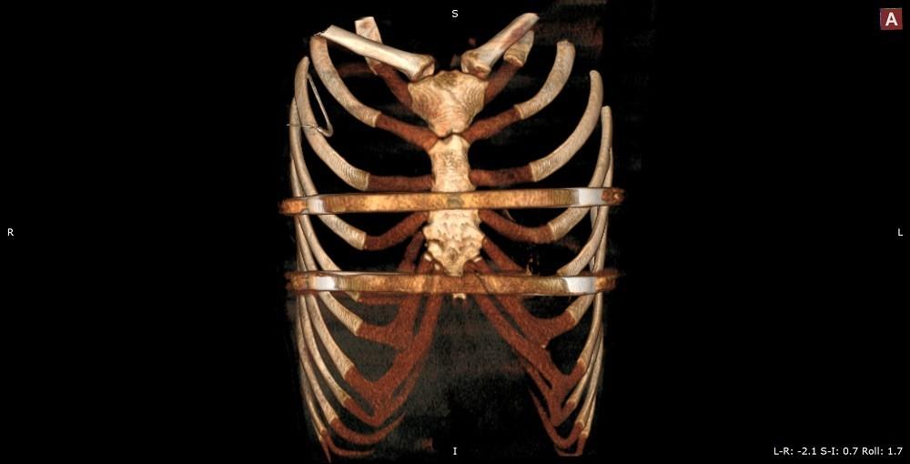 Импланты при ВДГК