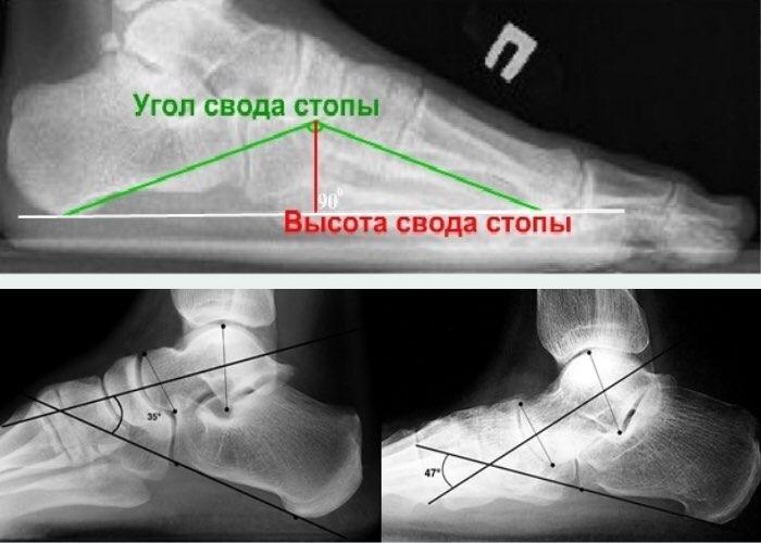 Рентген при плоскостопии